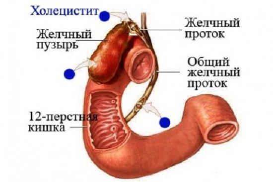 Холецистит — симптомы и лечение