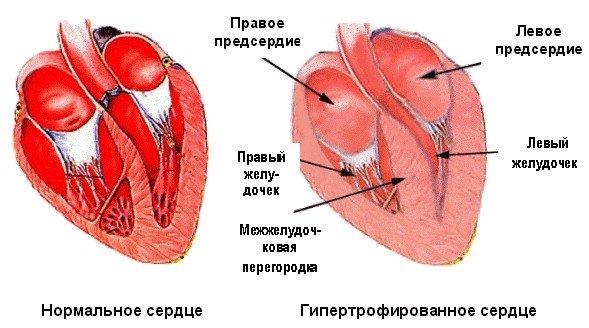 Сердечно легочная недостаточность — симптомы и лечение