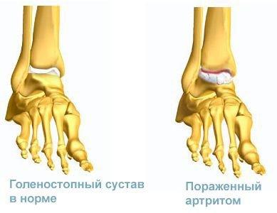 Артрит голеностопного сустава — симптомы и лечение