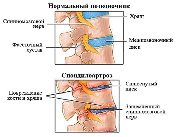 Спондилоартроз — симптомы и лечение