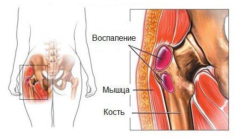 Трохантерит тазобедренного сустава — симптомы и лечение