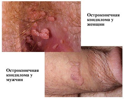 Остроконечные кондиломы — симптомы и лечение