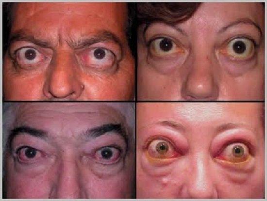 Гипертиреоз — симптомы и лечение