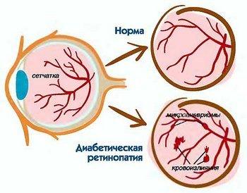 Диабетическая ретинопатия — симптомы и лечение