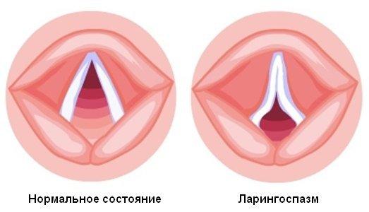 Ларингоспазм — симптомы и лечение