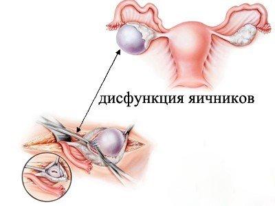 Дисфункция яичников — симптомы и лечение