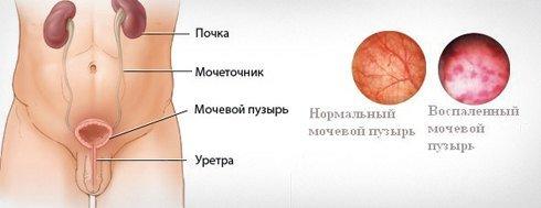 Цистит у мужчин — симптомы и лечение