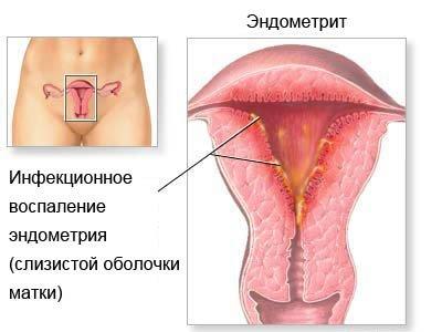 Метроэндометрит — симптомы и лечение