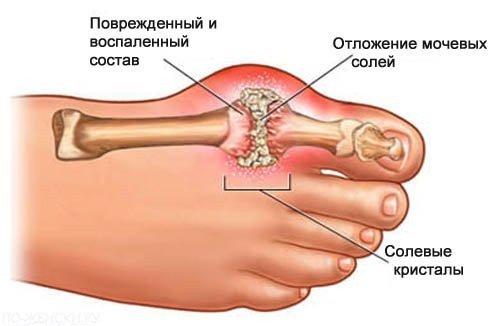 Подагрический артрит — симптомы и лечение