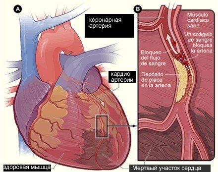Кардиосклероз — симптомы и лечение