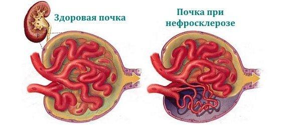 Нефросклероз — симптомы и лечение