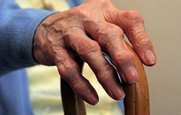 Артроз кистей и пальцев рук — симптомы и лечение