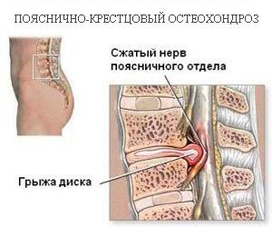 Остеохондроз пояснично-крестцового отдела позвоночника — симптомы и лечение