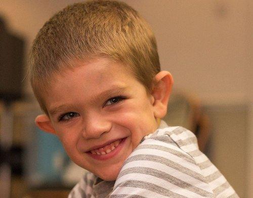 Синдром Мартина-Белл — симптомы и лечение, фото и видео