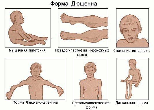 Мышечная дистрофия — симптомы и лечение