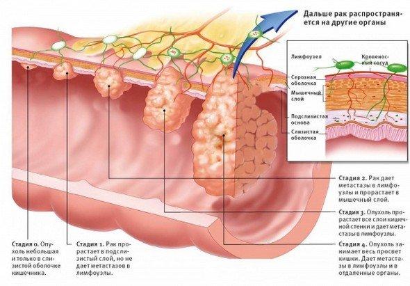 Рак двенадцатиперстной кишки — симптомы и лечение