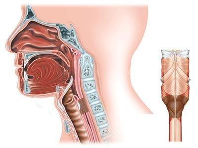 Стеноз гортани — симптомы и лечение, фото и видео