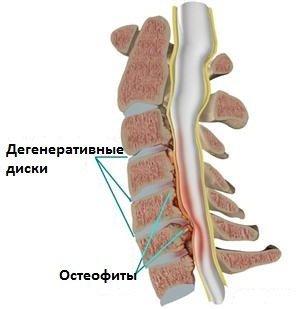 Стеноз позвоночного канала — симптомы и лечение