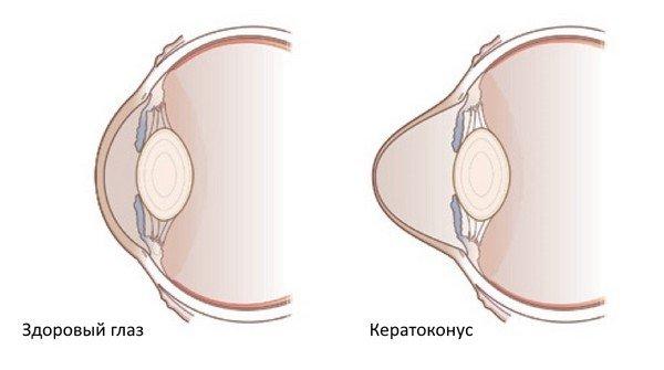 Кератоконус — симптомы и лечение
