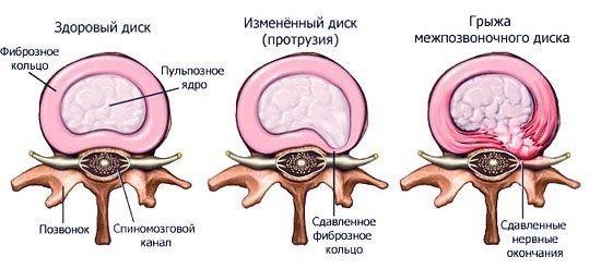 Протрузия шейного отдела позвоночника — симптомы и лечение