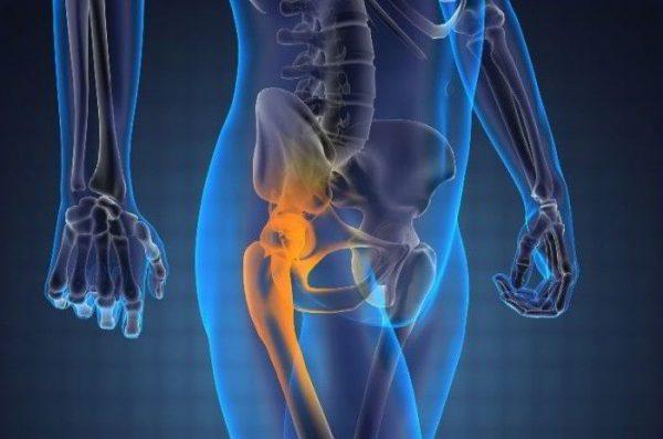 Артроз тазобедренного сустава - симптомы и лечение, фото и видео.