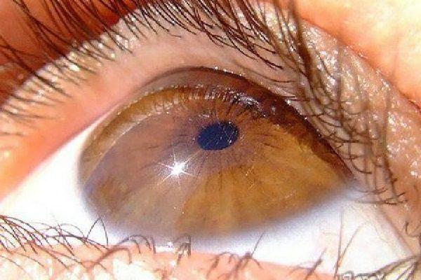Дистрофия сетчатки глаза - симптомы и лечение, фото и видео.