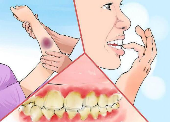 Гиперемия, гиперемия кожи лица, горла, венозная гиперемия