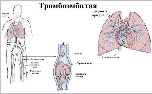 Тромбоэмболия - симптомы и лечение.
