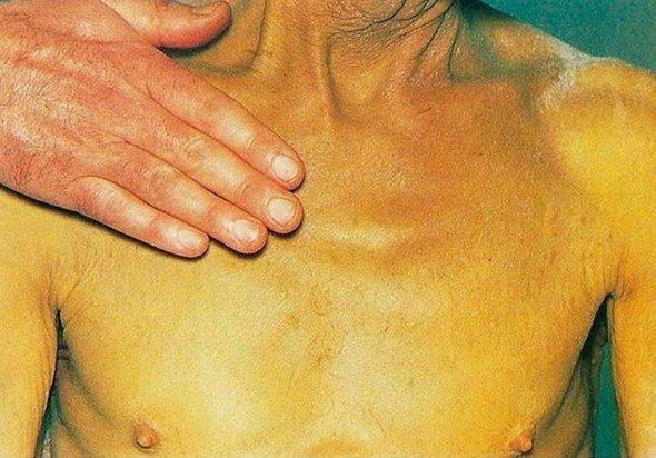 Механическая желтуха — симптомы и лечение