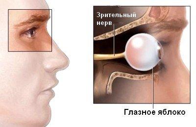 Неврит зрительного нерва — симптомы и лечение