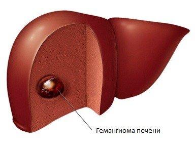Гемангиома печени — симптомы и лечение