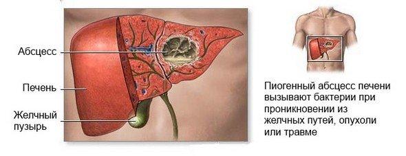 Абсцесс печени — симптомы и лечение