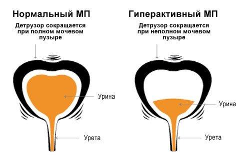 Гиперактивный мочевой пузырь — симптомы и лечение