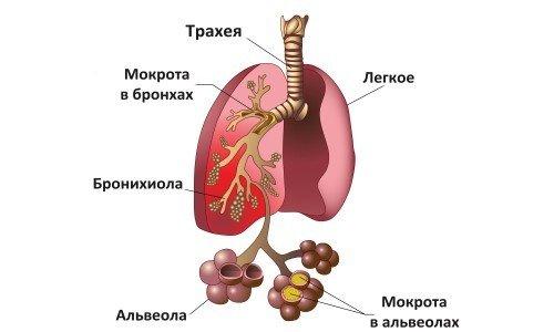 Атипичная пневмония — симптомы и лечение