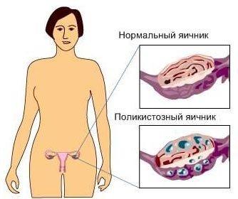 Синдром поликистозных яичников — симптомы и лечение