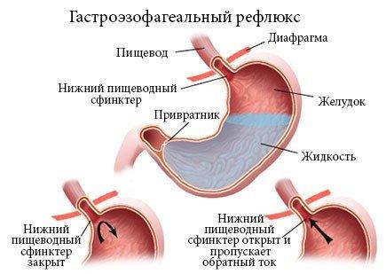 Гастроэзофагеальная рефлюксная болезнь — симптомы и лечение