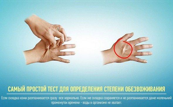 Обезвоживание — симптомы и лечение