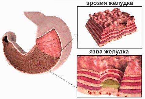 Эрозия желудка — симптомы и лечение