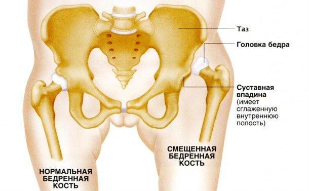 Врожденный вывих бедра — симптомы и лечение