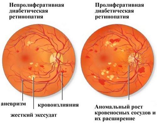 Ретинопатия — симптомы и лечение