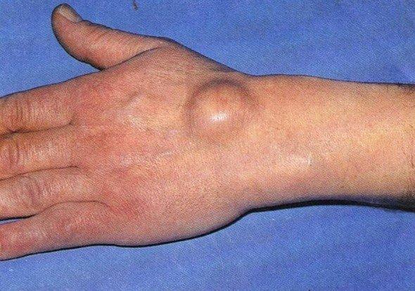 Гигрома кисти руки — симптомы и лечение