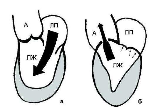 Аортальный стеноз — симптомы и лечение