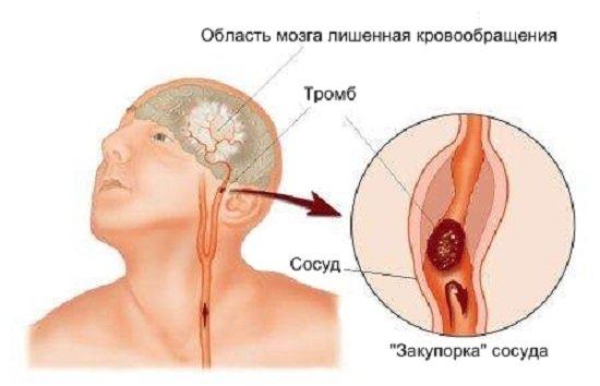 Ишемический инсульт — симптомы и лечение