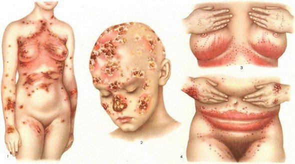 Кандидоз кожи — симптомы и лечение