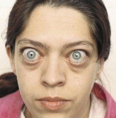 Экзофтальм пучеглазие — симптомы и лечение
