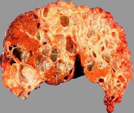 Поликистоз печени — симптомы и лечение