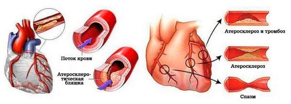 Сердечный приступ — симптомы и лечение