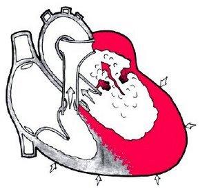 Приобретенный порок сердца — симптомы и лечение