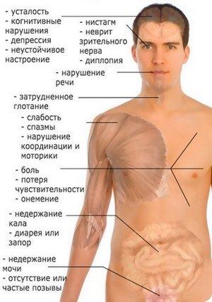 Энцефаломиелит — симптомы и лечение