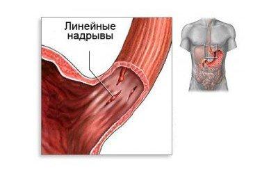 Желудочное кровотечение — симптомы и лечение